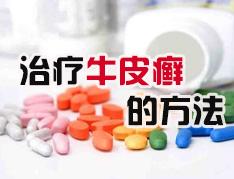银屑病的用药注意事项有哪些