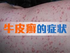 寻常型银屑病与湿疹的区分方法